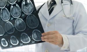 Levante Ideias - Exames médicos